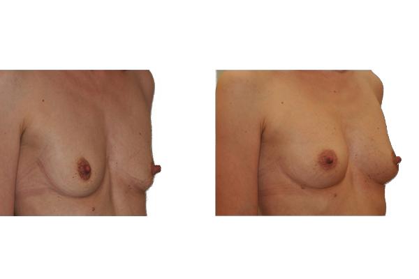 Brustvergroesserung-eigenfett_4_turkof_at_wien