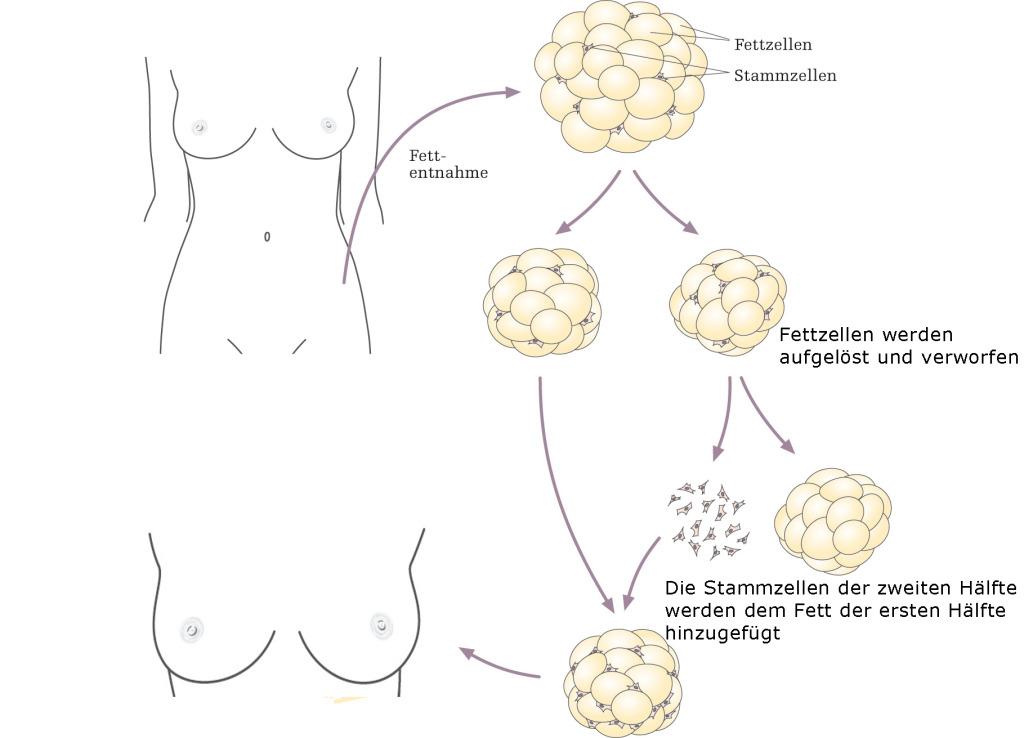 risiken brustvergroesserung achsellymphknoten